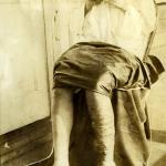Foto atribuida Atilio Moscioni. Muestra una paciente con filariasis